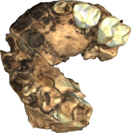 Partial maxilla