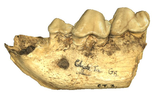 Partial mandible